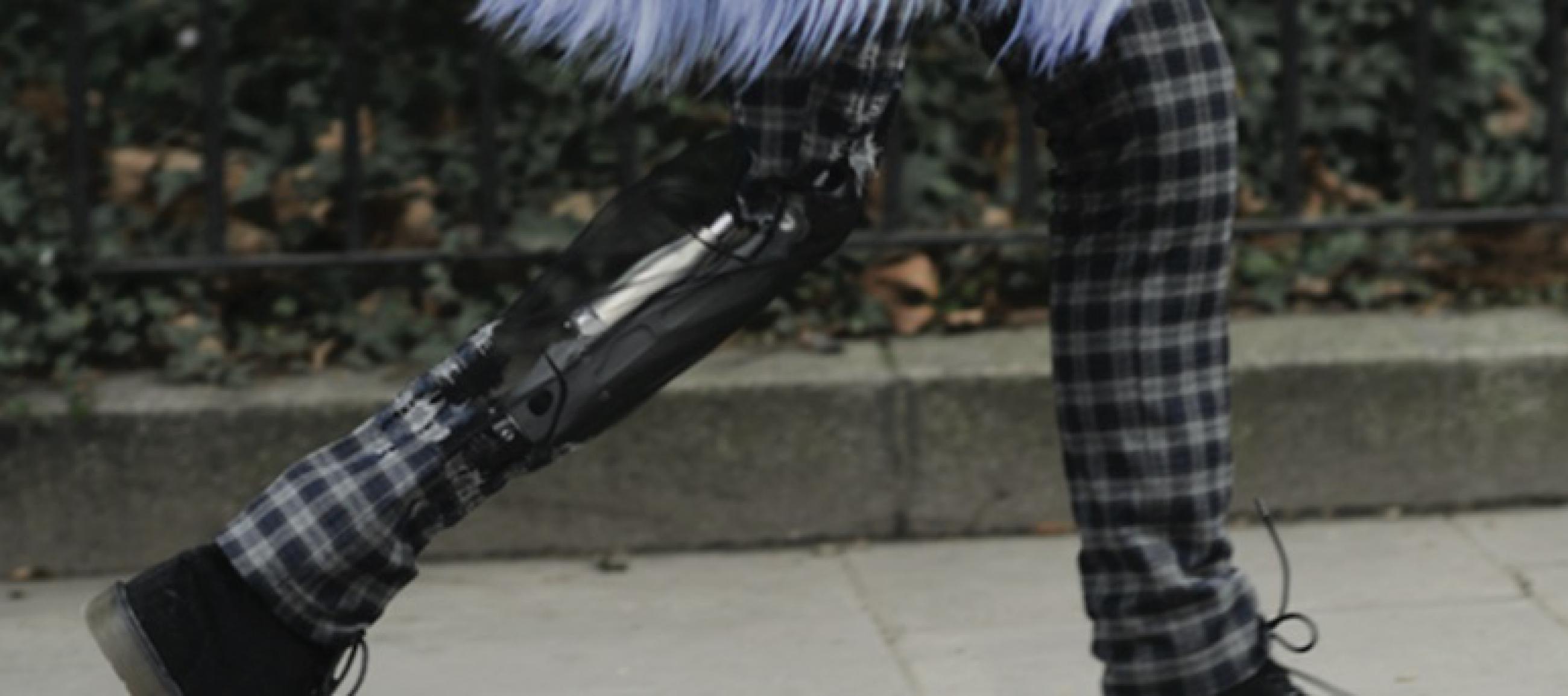 VGK Very Good Knee Prothesenträgerin