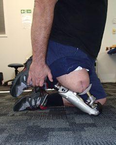 Endo-Exo-Prothese mit Very Good Knee